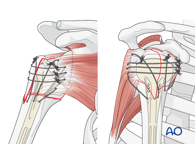 extraarticular 3 part surgical neck and tuberosity dislocation