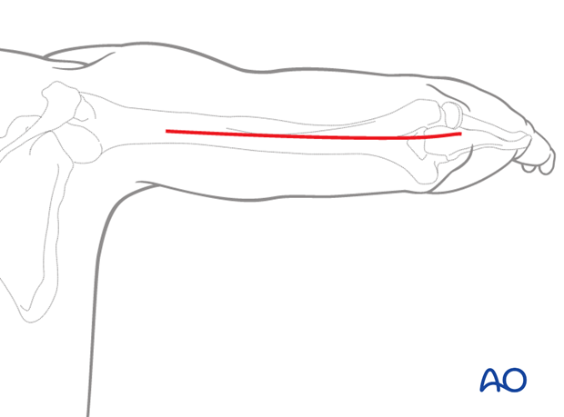 Distal posterior approach