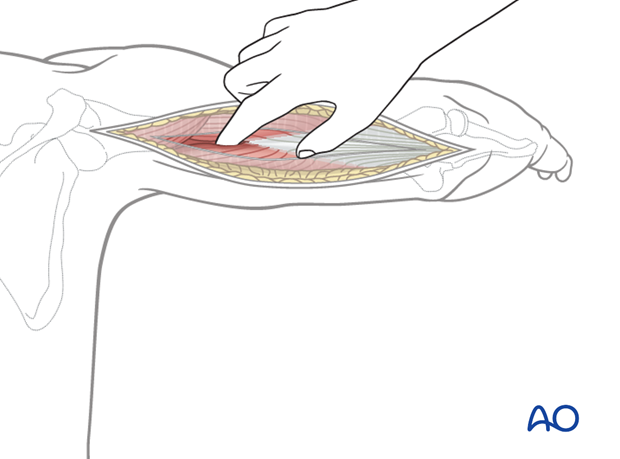 By palpation with a finger, identify the interval between the lateral and long heads of the triceps.