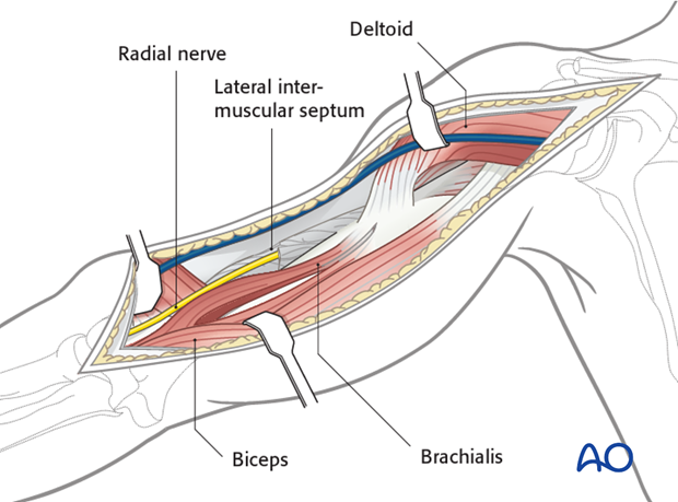 Dissect the brachialis within the neurovascular plane between the radial and the musculocutaneous nerves to maintain innervation of the brachialis.