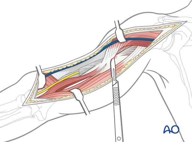 Partially release the deltoid insertion anteriorly, if necessary, and retract laterally to access the proximal humerus.