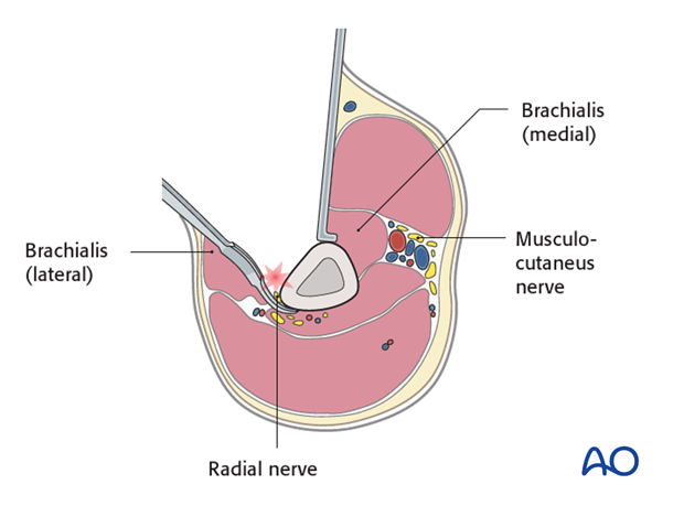 Pitfall: injury of the radial nerve