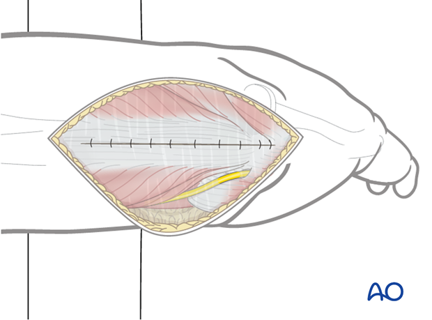 Close the incised triceps tendon and the posterior fascia of the upper arm with sutures in layers.