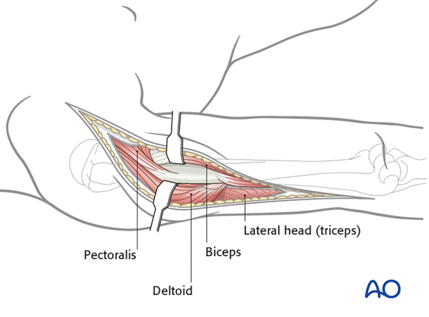 Proximal extension of the approach