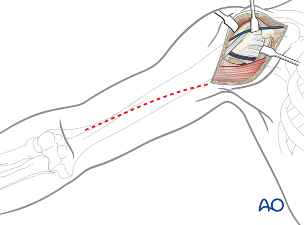 Extended deltopectoral approach to the humeral shaft