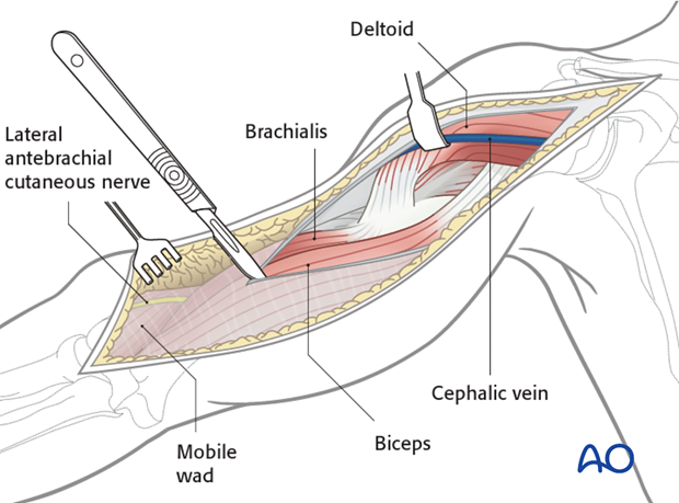 Superficial dissection of the humeral shaft