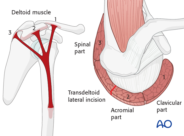 The incision is placed between the acromial part (2) and the spinal part (3) of the deltoid muscle