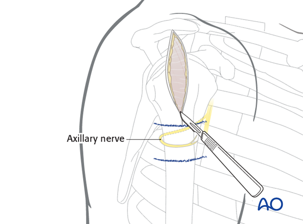 Make a skin incision from the lateral border of the acromion 5 cm distally, parallel to the axis of the humerus.