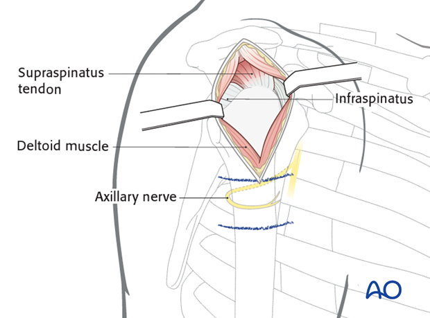Exposure of the middle third part of the deltoid muscle