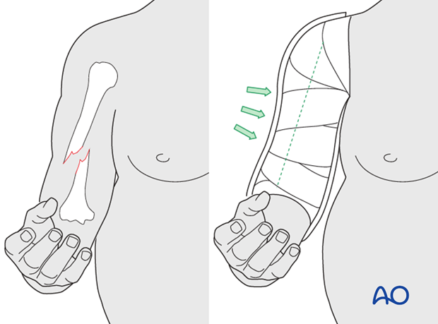 Tendency for varus malalignment, particularly in obese patients