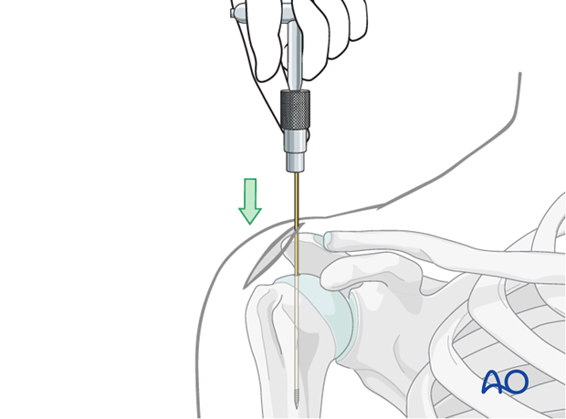 Insertion of guide wire