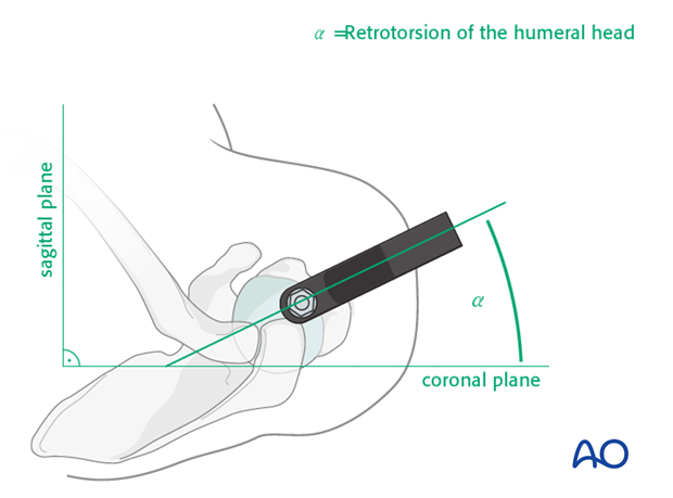 Rotational implant position