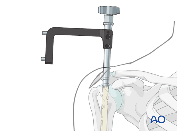 Make sure the proximal end of the nail is placed beneath the bony surface of the humeral head.