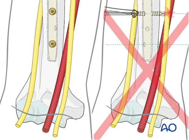 Pitfall: interference of the screw insertion with neurovascular structures