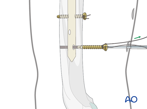 Antegrade nailing with bent nail - Pearl: absorbable suture around the screw
