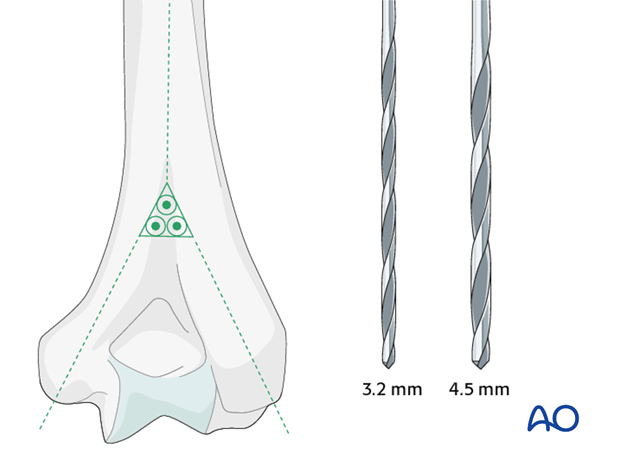A central triangle with a proximal apex is defined between the medial and the lateral supracondylar ridges and the olecranon fossa.