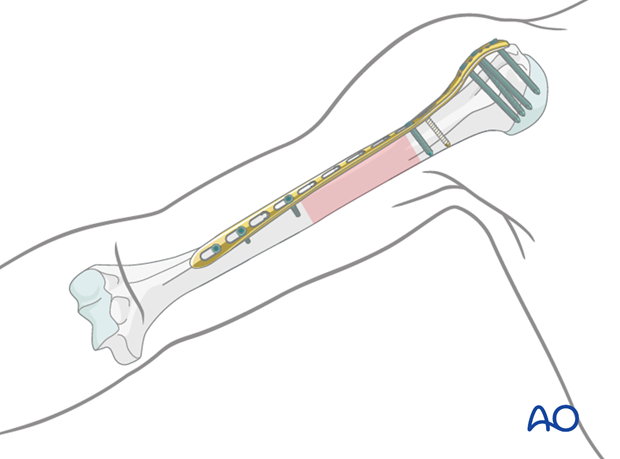 If the fracture morphology requires a longer plate, covering most of the length of the humerus, it is twisted to form a helix.