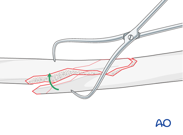 Pointed reduction forceps
