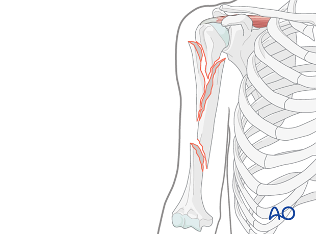 In fractures with markedly displaced proximal, metaphyseal fragmentation it is crucial to still achieve anatomic or almost anatomic reduction.