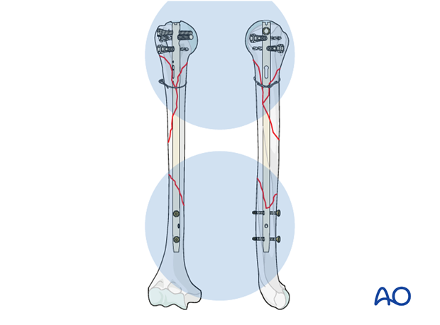 When interlocking is completed, check the definitive position of the implant under image intensification in two planes.