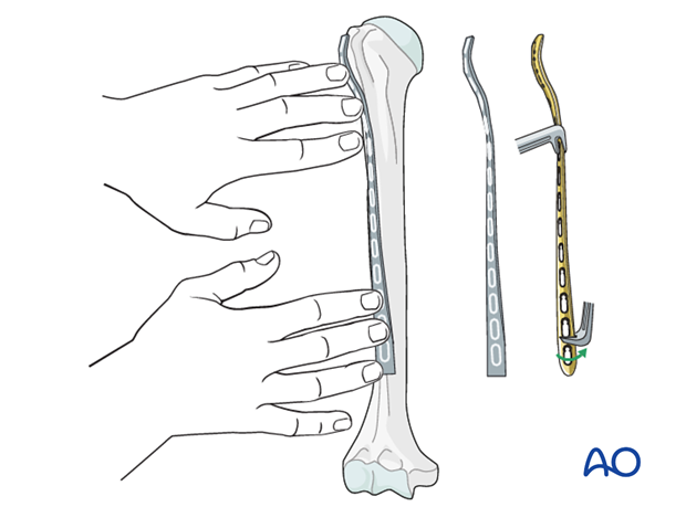 Plating of proximal 1/3 fractures