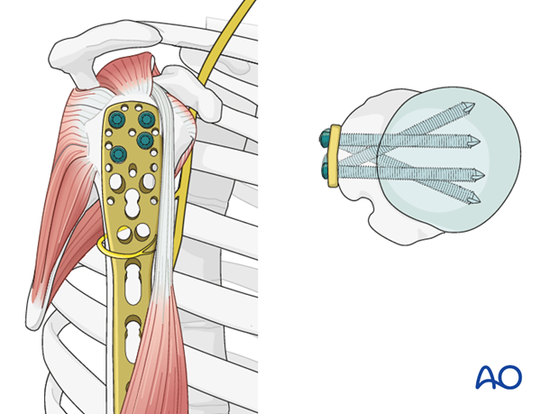 Plate fixation to humeral head