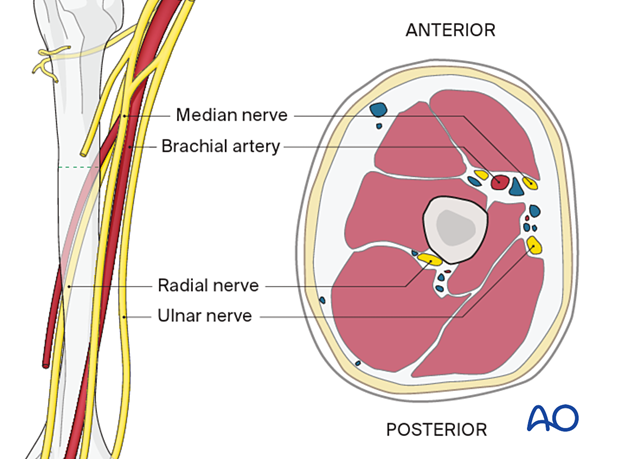 Neurovascular anatomy in the middle third of the humerus