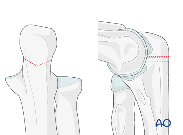 Lines of a planned chevron olecranon osteotomy