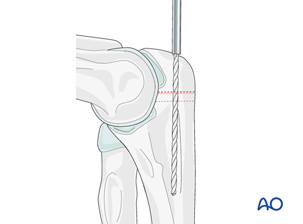 Predrilling for later osteotomy fixation with intramedullary screw