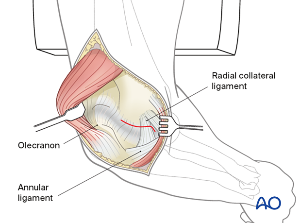 Incision of the posterolateral capsule on the lateral side of the ulnohumeral joint