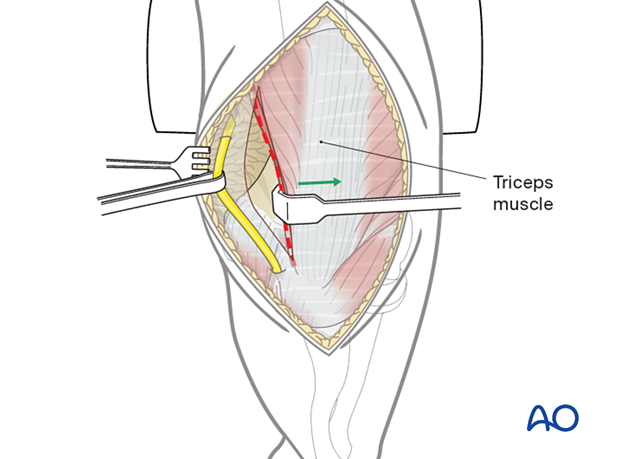 Detachment of the triceps insertion subperiosteally from the proximal ulna towards the radial side