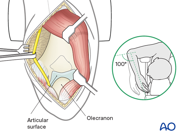 Flex the elbow beyond 100° to enhance visualization of the articular surface.