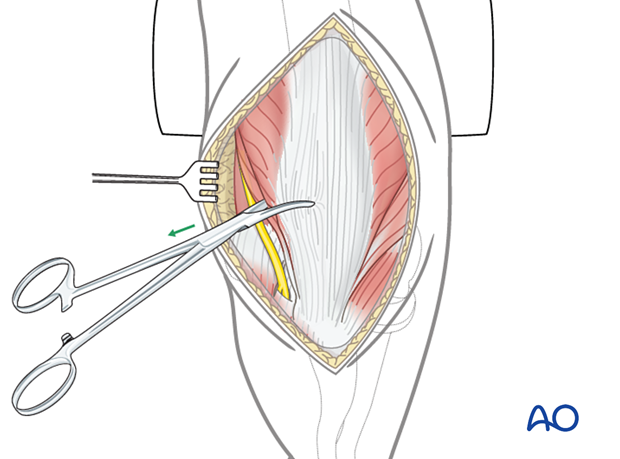 Pulling the extensor apparatus into place with a Kocher forceps