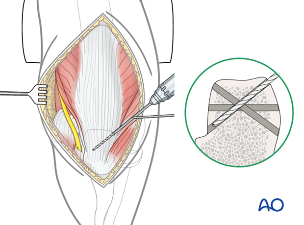 Reattachment of the triceps tendon insertion to the olecranon with transosseous sutures: drilling of transosseous tunnels
