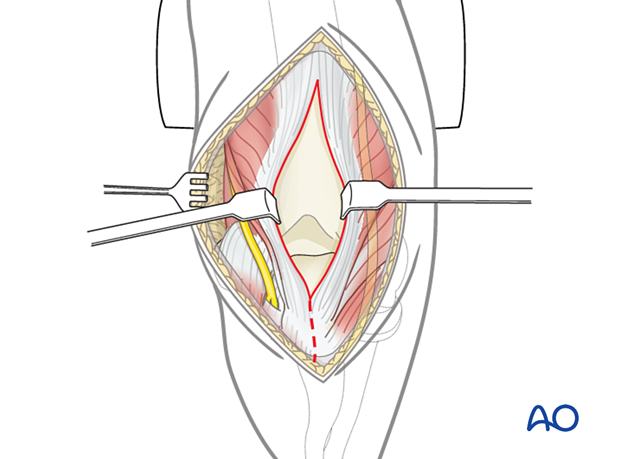 Posterior triceps-split approach (Campbell): Subperiosteal dissection of the tendon and associated soft-tissue attachments of the ulna should be performed carefully.