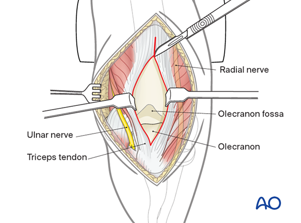 Further split the triceps tendon and aponeurosis proximally.