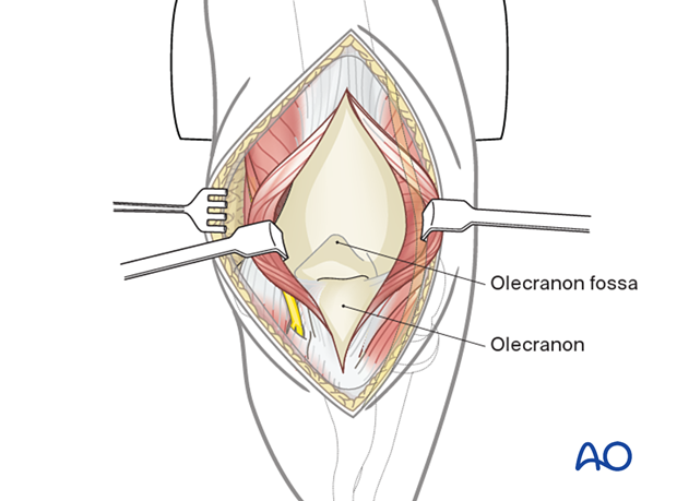 Soft-tissue retraction will now provide a wide view of the posterior aspect of the distal humerus.