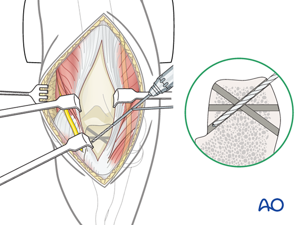 Preparation of transverse and oblique transosseous tunnels in the olecranon