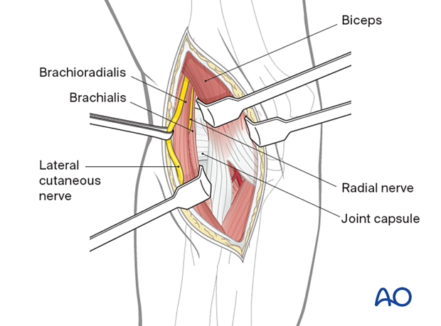 The brachioradialis and brachialis can now be safely retracted with protection of the radial nerve to allow identification of the anterior joint capsule.