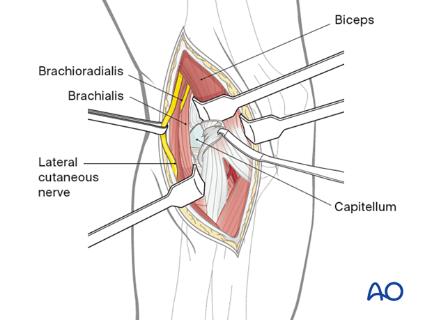 Incise the joint capsule longitudinally to allow access to the capitellum and lateral trochlear ridge.