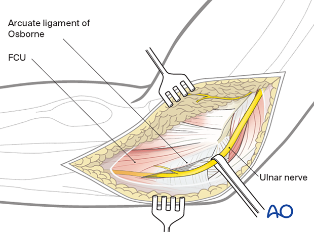 Gently free the ulnar nerve and protect it.