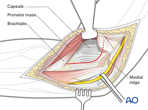 The planned capsulotomy is marked in red.
