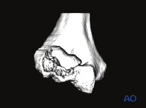 3-D CT reconstruction of a capitellar fracture with extension into the lateral trochlea