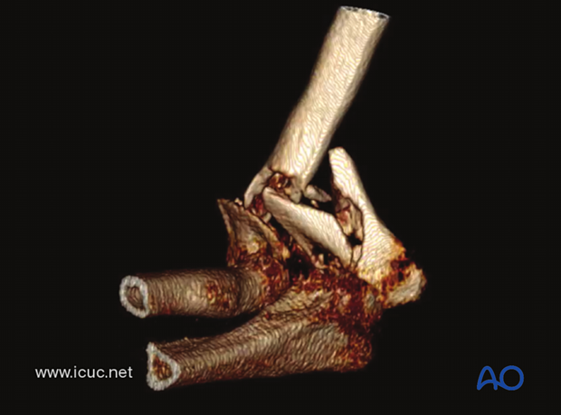 3D-CT demonstrating a C-type distal humeral fracture with much comminution