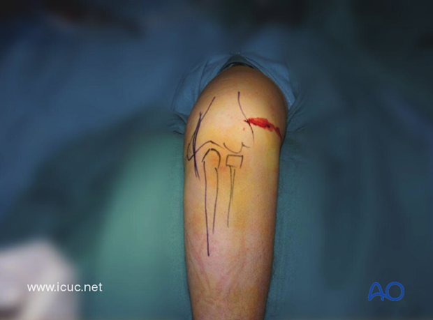 The surgical anatomy has been drawn on the patient's elbow and a small, lateral, grade 1 open wound is present.
