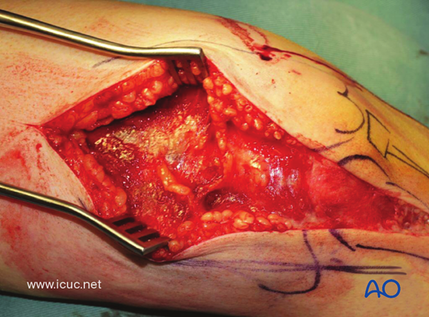 This is a complex, intraarticular fracture.
