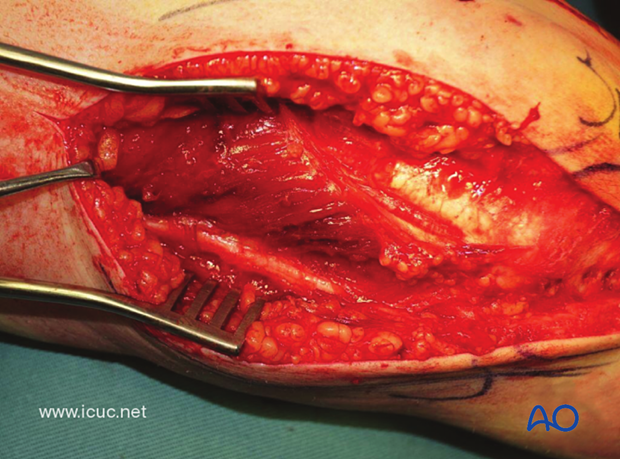 The ulnar nerve is carefully dissected and protected on the medial side.