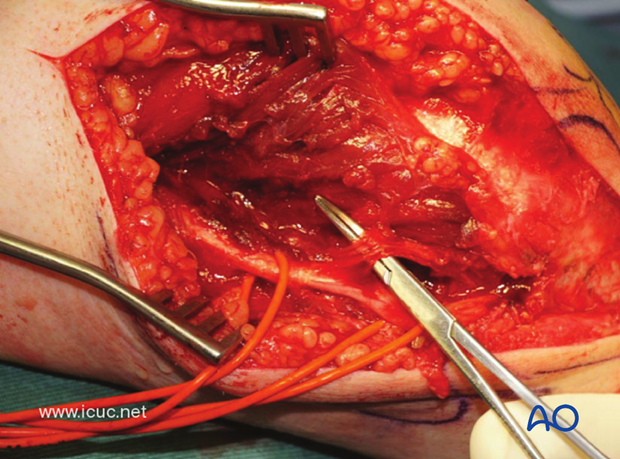 This image shows a carefully dissected and protected branch to the flexor carpi ulnaris.