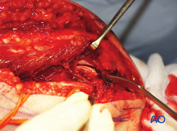 By dissecting medially from the cubital tunnel, the bare spot of the olecranon can be found.
