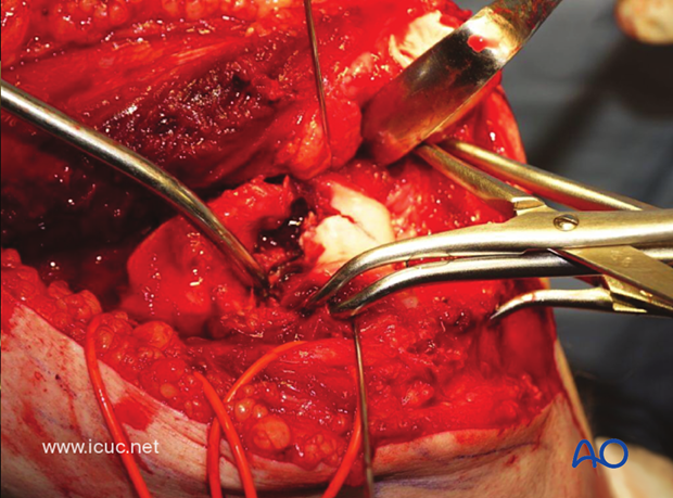 This intraoperative video demonstrates the joint reduction and the significant metaphyseal comminution.